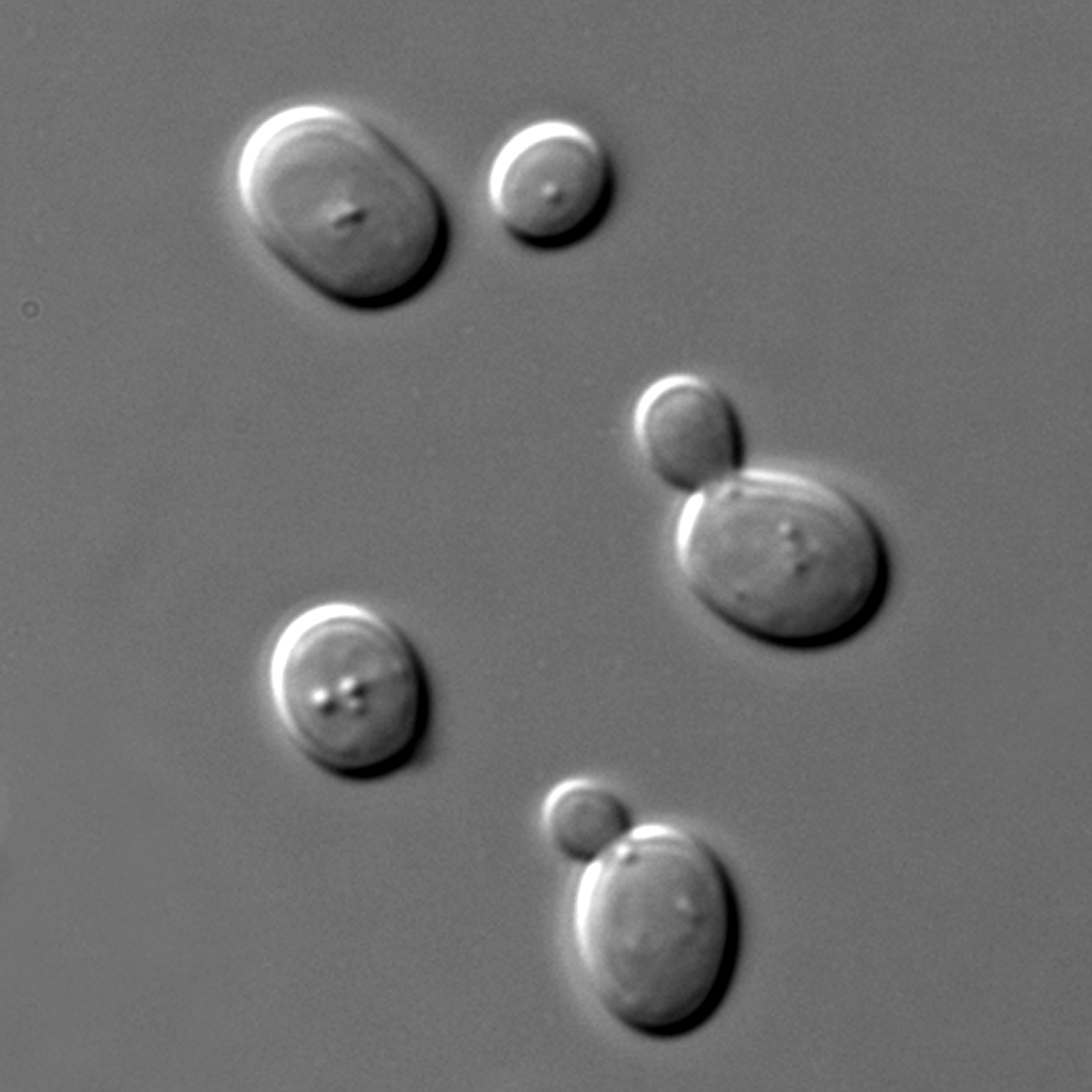 Microscopic picture of yeast cells